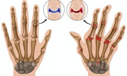 Najčešći uzroci oticanja zglobova i kada se treba zabrinuti